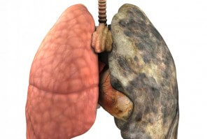 Smoking Damages The Lungs